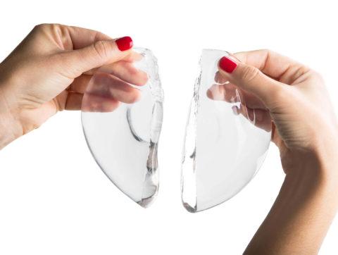 Recambio de implantes mamarios